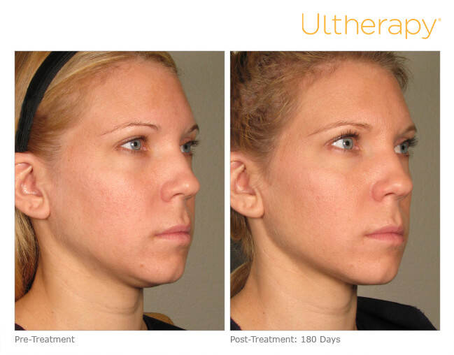 ultherapy-p011_before-180days_full
