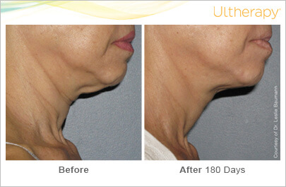 ultherapy_0008-0086w_beforeandafter_180day_1tx_neck2
