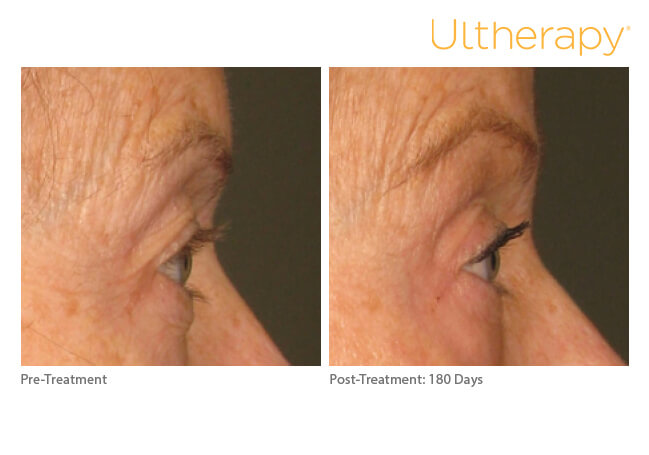 ultherapy_0197c-d_beforeandafter_brow-2_low-res