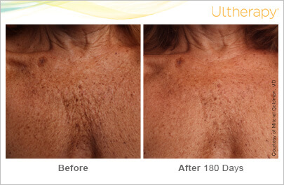 ultherapy_093-014-s-c_beforeandafter-180day_1tx_chest
